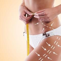המסת שומן – כל מה שצריך לדעת!